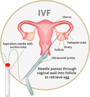 Fertility Treatments | Genesis Fertility Clinic Vancouver