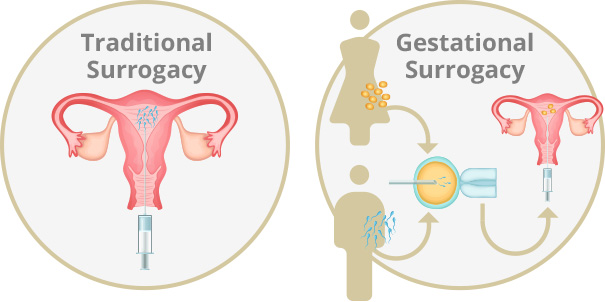 Diagram of traditional surrogacy vs gestational surrogacy